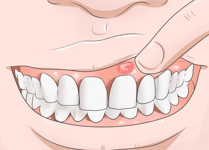 Inflamed or irritated gums