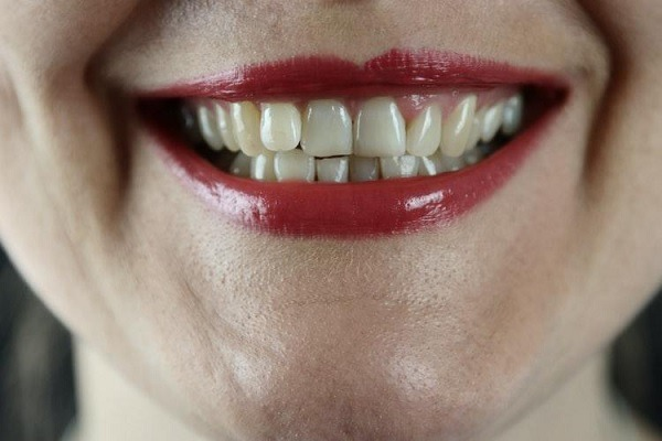 What To Do When You Have Chipped Tooth